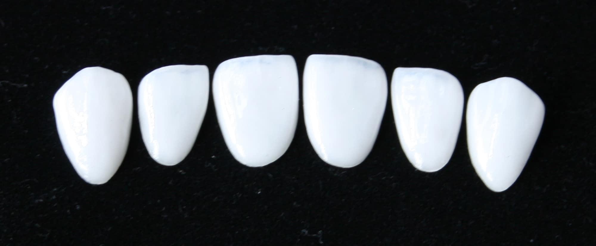 Placaers stratifiés en porcelaine cosmétique